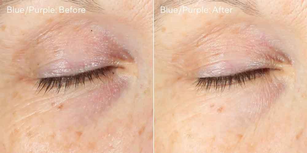 Murad Vita C Eyes Corrector Purple
