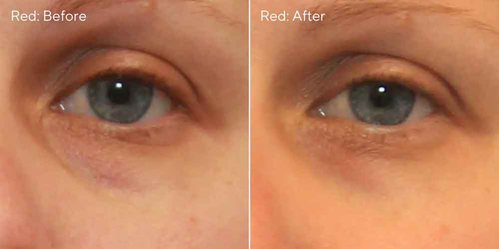 Murad Vita C Eyes Corrector red