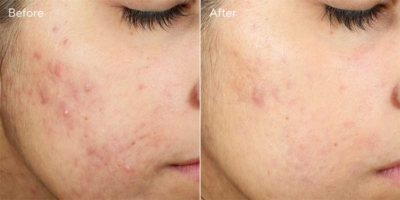 invisiscar before after Murad