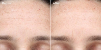 multi vitamin infusion oil before after